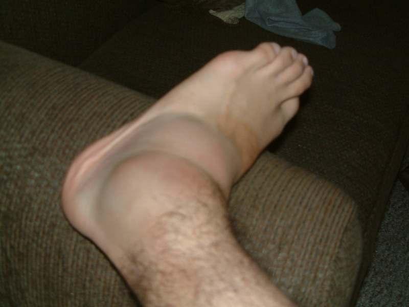 Как снять отек ноги после операции